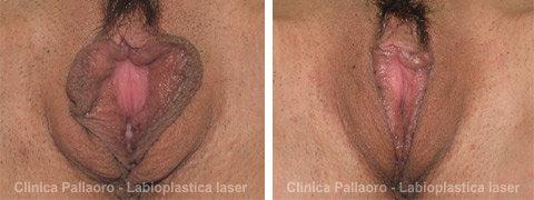 Labioplastica foto