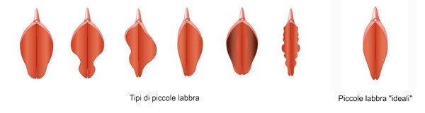 """Labioplastica: Tipi d' inestetismi e forma """"ideale"""""""