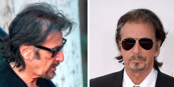 Trapianto capelli Vip - Al Pacino