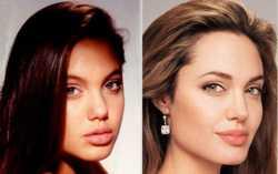 Angelina Jolie : Rinoplastica foto prima e dopo